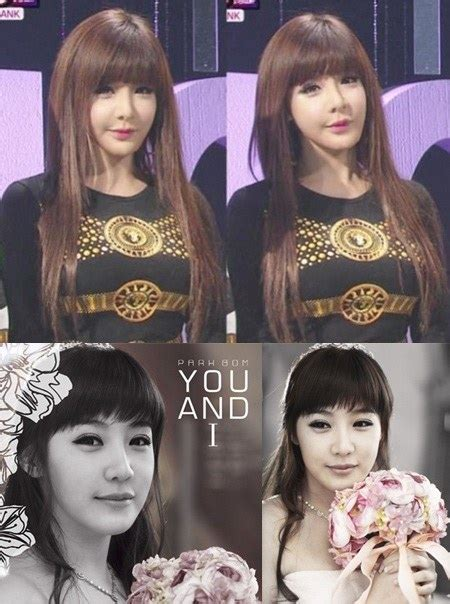 Park Bom's pointy chin arouses more plastic surgery